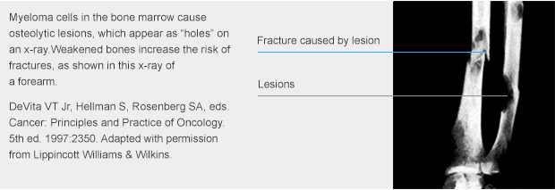 myeloma-causes-osteolytic-lesions-andfractures